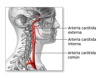 arteria_carotida_interna [Neurocirugía Contemporánea]