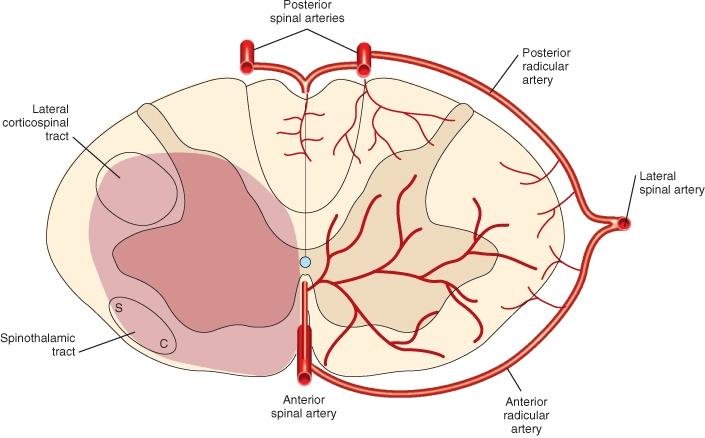 arteria_espinal_anterior [Neurocirugía Contemporánea]