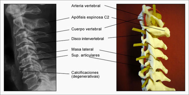 columna_cervical [Neurocirugía Contemporánea]
