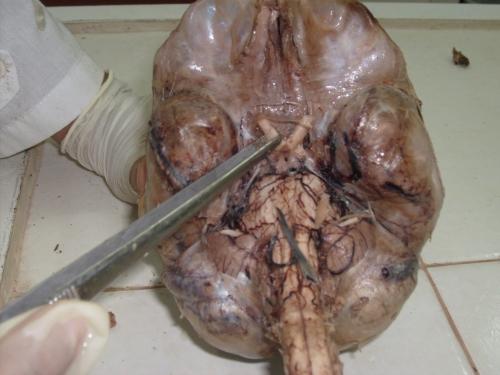 quiasma_optico [Neurocirugía Contemporánea]
