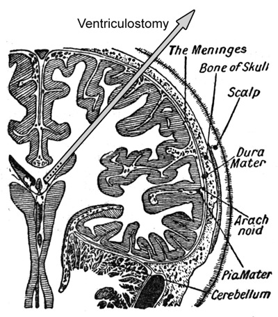 ventriculostomy.jpg